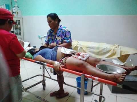 Εκρηξη σε ξενοδοχείο στις Φιλιππίνες -Πολλοί τραυματίες, πληροφορίες για νεκρούς [εικόνες] - Εικόνα