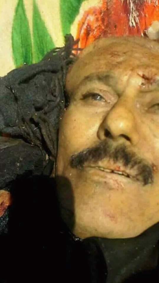 ΕΚΤΑΚΤΟ – Προσοχή σκληρές εικόνες: Νεκρός ο πρώην πρόεδρος της Υεμένης – Τον καθάρισαν Ιρανοί και Χούθι μετά την προδοσία - Εικόνα5