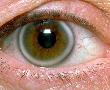 Υψηλή χοληστερίνη: Το σημάδι στα μάτια που δείχνει ανεβασμένη χοληστερόλη (εικόνες) - Εικόνα1