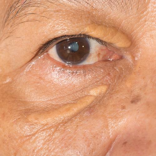 Υψηλή χοληστερίνη: Το σημάδι στα μάτια που δείχνει ανεβασμένη χοληστερόλη (εικόνες) - Εικόνα2