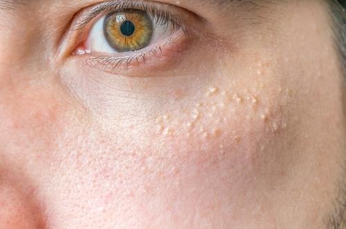 Υψηλή χοληστερίνη: Το σημάδι στα μάτια που δείχνει ανεβασμένη χοληστερόλη (εικόνες) - Εικόνα3