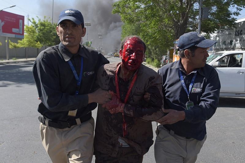 Μακελειό στην Καμπούλ: 80 νεκροί και 350 τραυματίες από έκρηξη παγιδευμένου οχήματος - Εικόνα 2