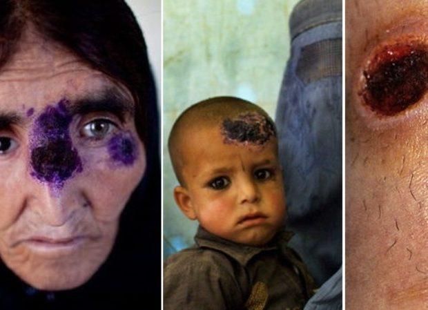 Σαρκοφάγα νόσος «το ΄σκασε» από το Ισλαμικό Κράτος και εξαπλώνεται μέσω προσφύγων
